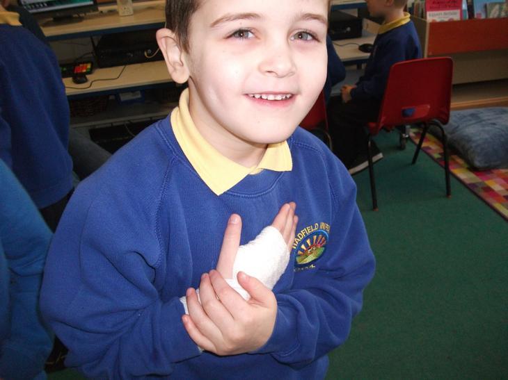 Alfie's arm was bandaged.